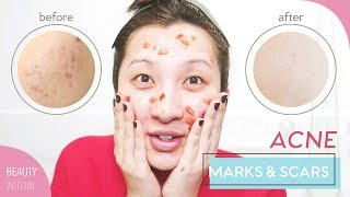 Remove Acne Marks, Hyperpigmentation & Scarring | Home Remedies + Natural Ingredients to Use
