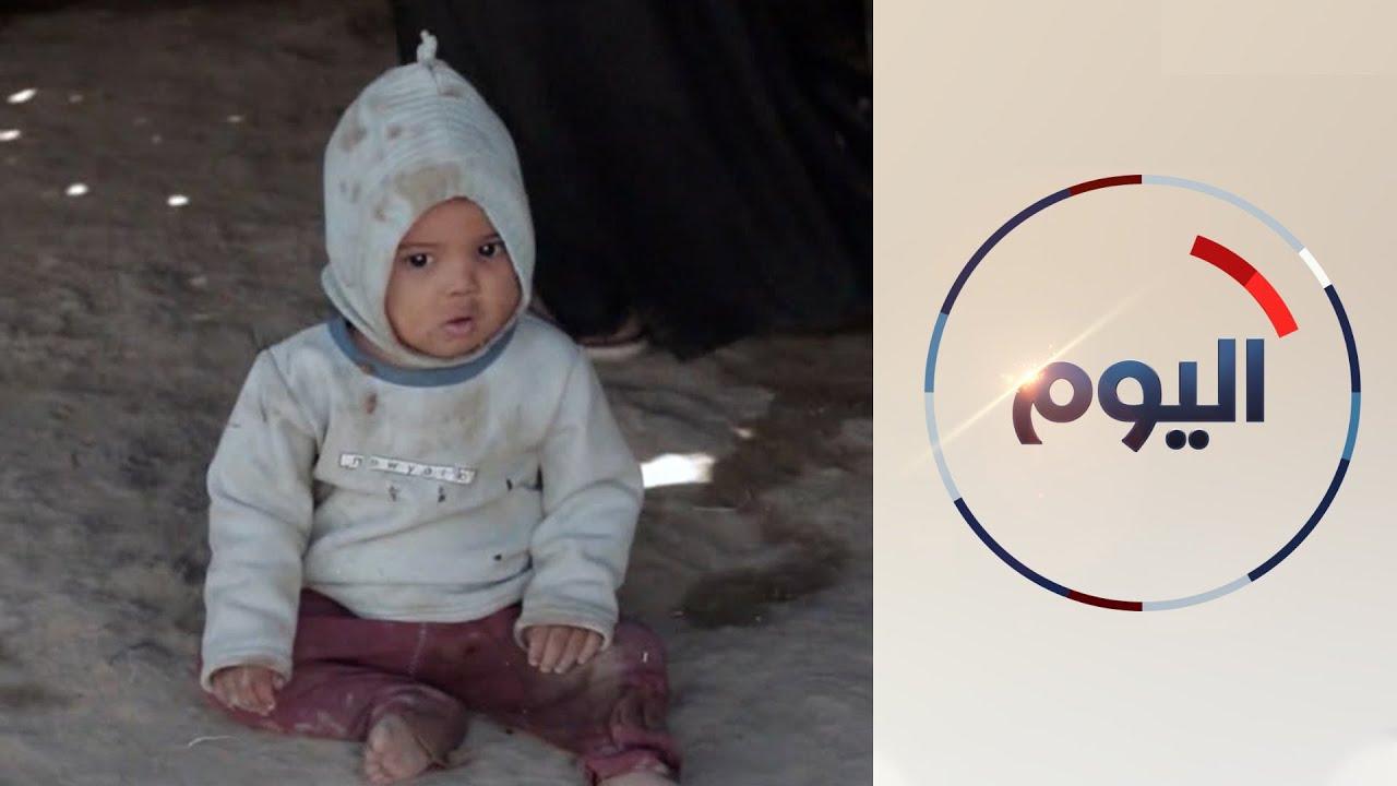 الحرب في اليمن تعمق معاناة المواطنين وترفع نسب المجاعة  - 11:55-2021 / 7 / 29