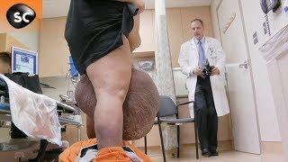 premier examen : les plus gros testicules au monde