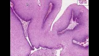 Laphámsejtes papilloma bőrpatológia körvonalai