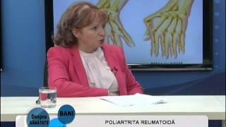 Poliartrita reumatoida - invitat: dr. Carmen Mihaela Dumitru(, 2015-02-18T20:04:51.000Z)