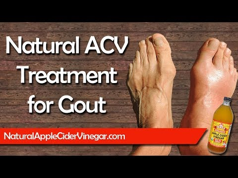 cure-gout-naturally-with-apple-cider-vinegar---natural-home-remedy-&-treatment