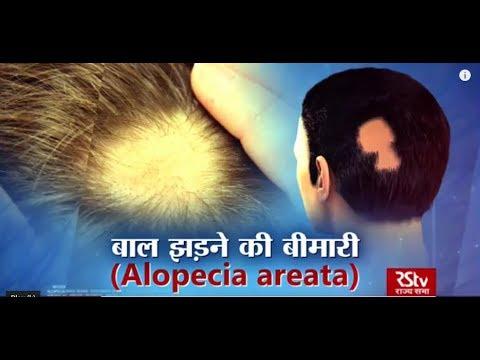 Ayushman Bhavah: Alopecia Areata   बाल झड़ने की बीमारी
