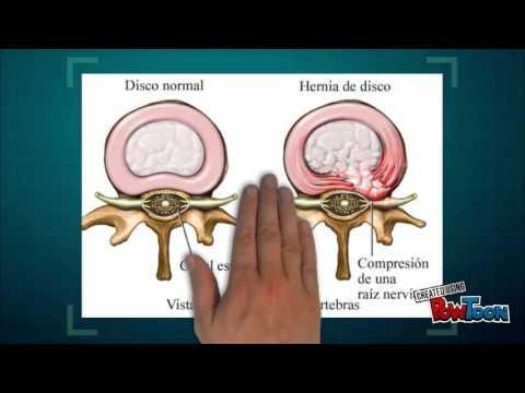 Hernia discal trabajo anatomia - YouTube