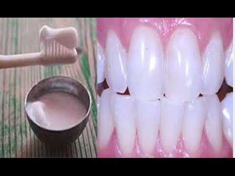 Foi Isto Que Ela Usou Para Clarear Os Dentes Eliminar Tartaro E