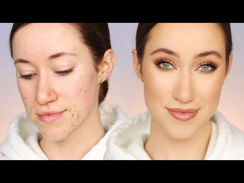 How I Cover My Acne (All Drugstore Makeup) 🙌🏼