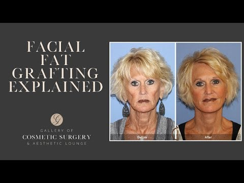 Facial Fat Transfer with a Facelift | Dr Kevin Sadati | Gallery of Cosmetic Surgery