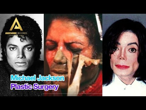 Michael Jackson Plastic Surgery Before and After Photos Slideshow