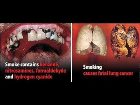 Benefits of Quit smoking