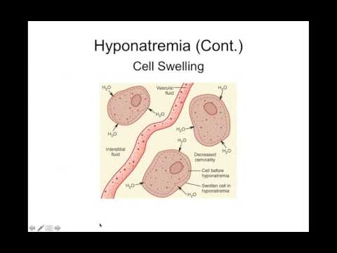 Chapter 24 Fluid and Electrolyte Homeostasis and Imbalances BIOL300