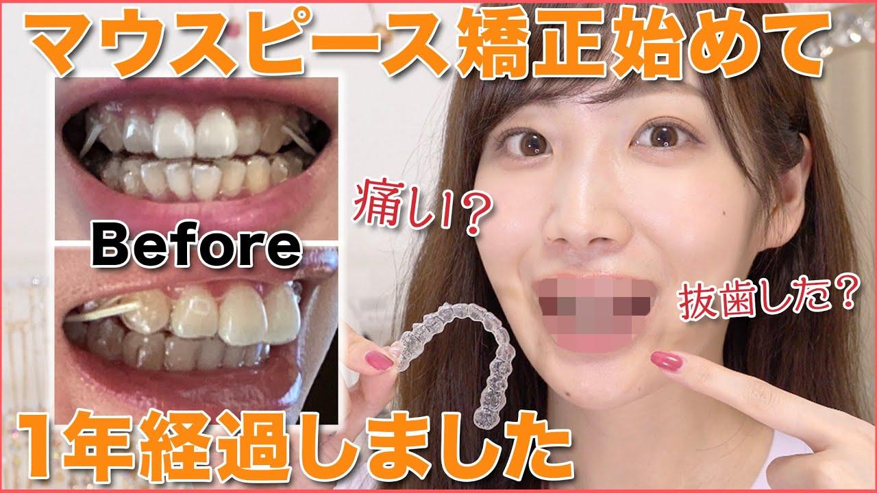 で 自分 前歯 矯正 歯並びを手で治すことができるって本当?専門医が詳しく解説します
