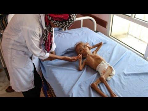 مسؤول أممي: الأمم المتحدة تخسر -المعركة ضد المجاعة- في اليمن  - نشر قبل 15 ساعة