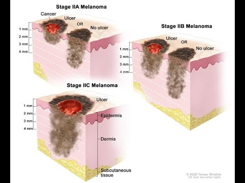Melanoma Cancer Treatment and Statistics