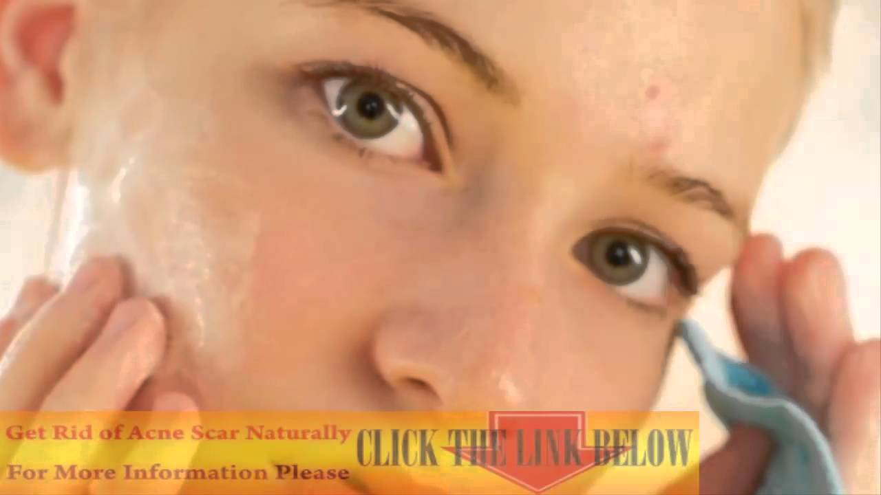 how to get rid of skin redness from acne