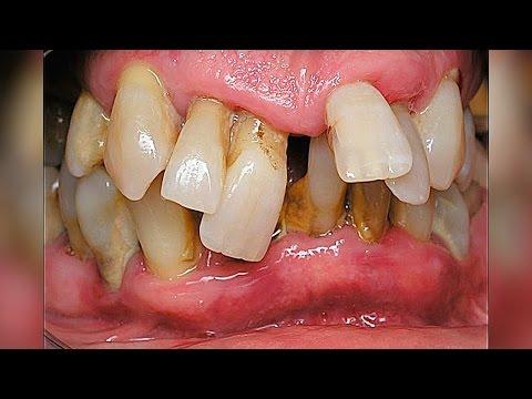 Первые зубки малыша: нормы и отклонения - Статьи - 7