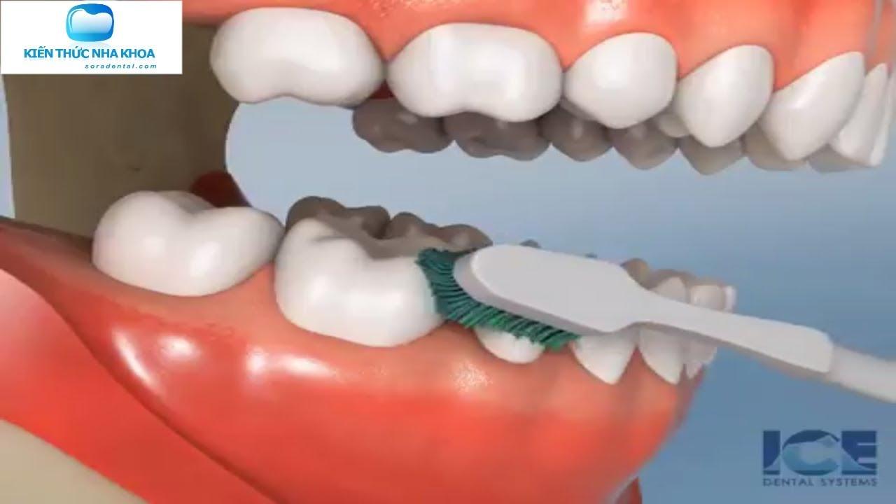 Hướng dẫn các chải răng hàm dưới đúng cách   Kiến Thức Nha Khoa