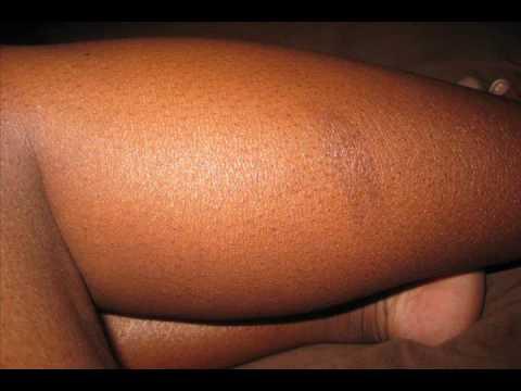 eczema on legs black people - photo #36