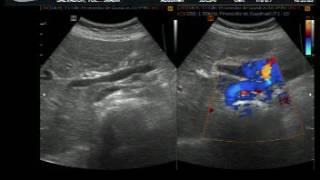 cancer ecografia abdominal