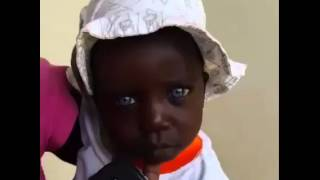 Video African Girl Born With Blue Eyes download MP3, 3GP, MP4, WEBM, AVI, FLV Juli 2018