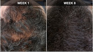 Hair Regrowth Experiment Week 8 Results