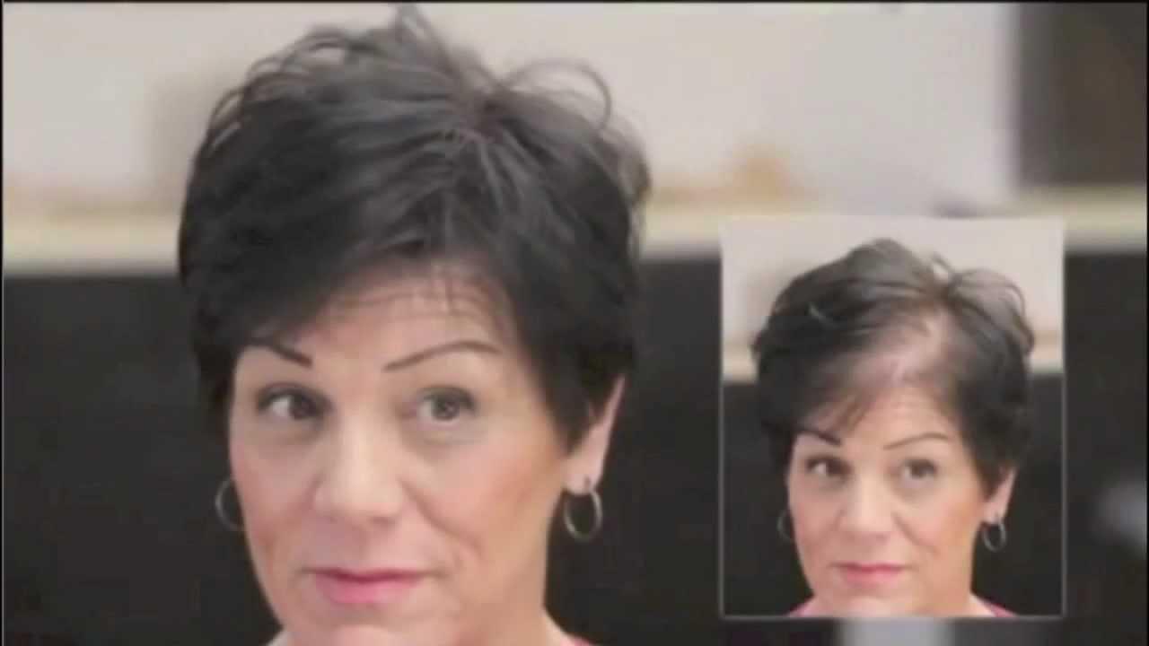El medio contra la caída de los cabello y la alopecia