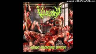 Vulvectomy - Orgasmic Sensation Through Fecal Ingestion