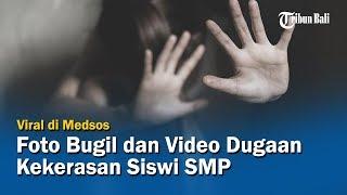Foto Bugil dan Video Dugaan Kekerasan Siswi SMP di Buleleng Viral di Medsos