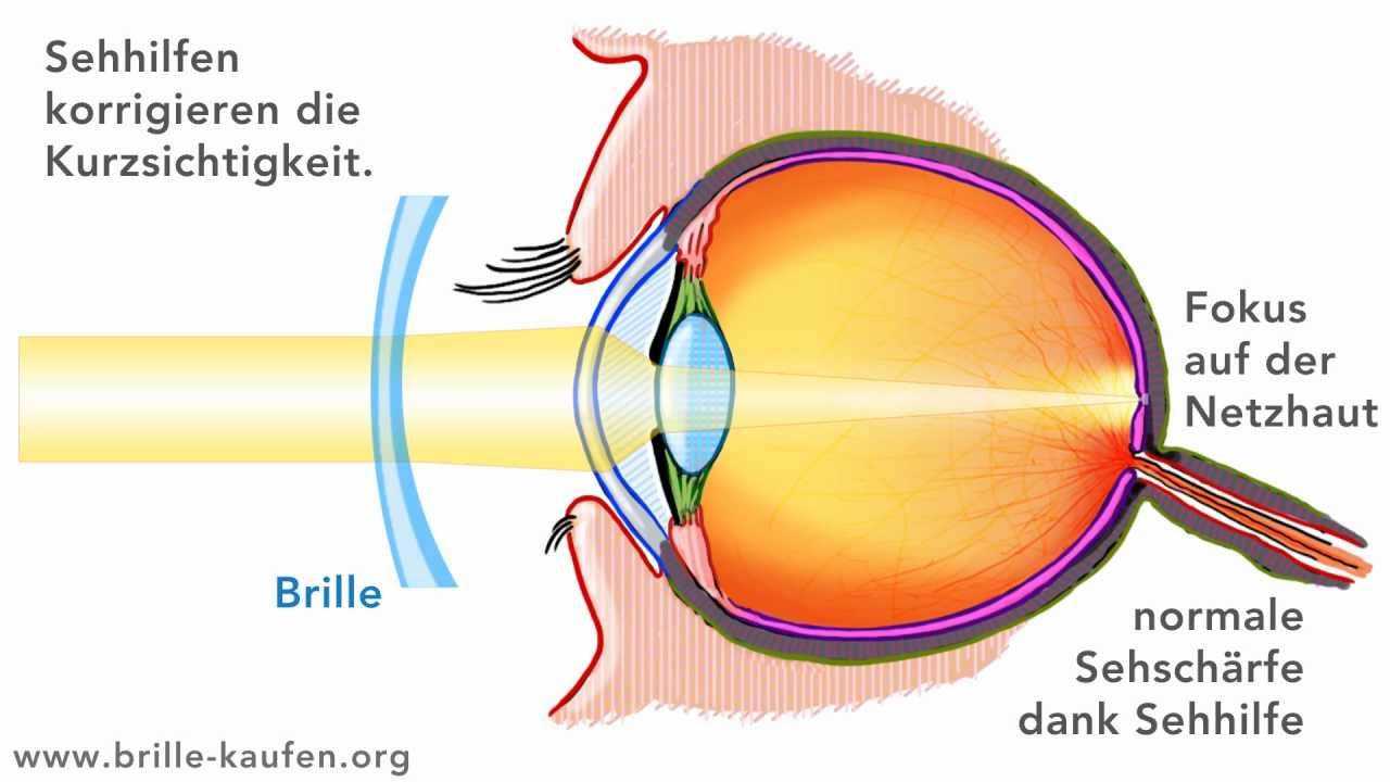 weitsichtigkeit lasern