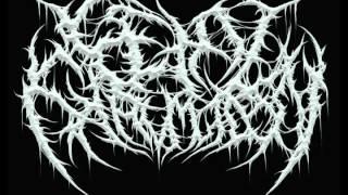 Fetal Exhumation - Digestive Bowel Reflux [HQ]