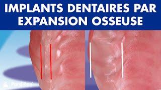 Expansion osseuse alvéolaire pour placer des implants ©