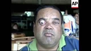 "Brazilian man sets sights on world record as ""furthest eye popper"""