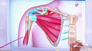 Повреждение мышц плеча - частая и болезненная патология