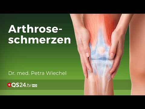 Arthroseschmerz behandeln ohne Skalpell