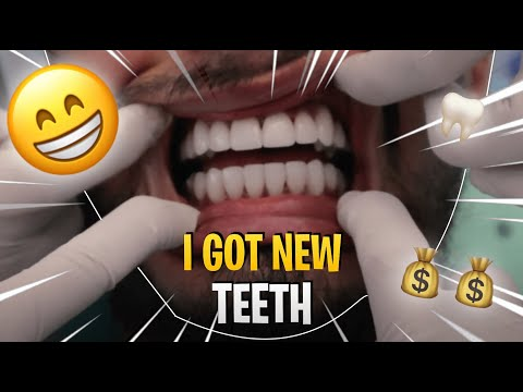 I GOT VENEERS IN THAILAND!!!! NEW TEETH, PRICE, BEFORE AND AFTER