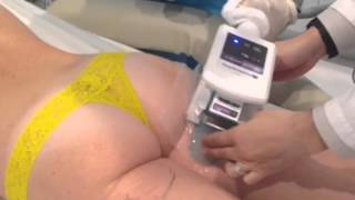 CoolSculpting By Zeltiq in Los Angeles - Fat freezing the buttocks Thumbnail