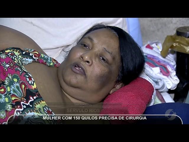 JMD (08/03/19) - Mulher com obesidade mórbida precisa de cirurgia