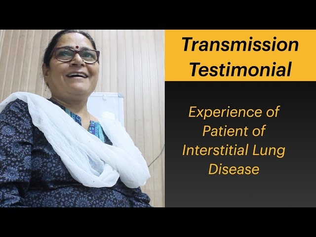 Treatment Experience of Patient of Interstitial Lung Disease