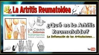 ¿Qué es la Artritis Reumatoidea? Inflamación de las Articulaciones - Causas, Síntomas y Tratamientos(, 2014-07-02T10:17:50.000Z)