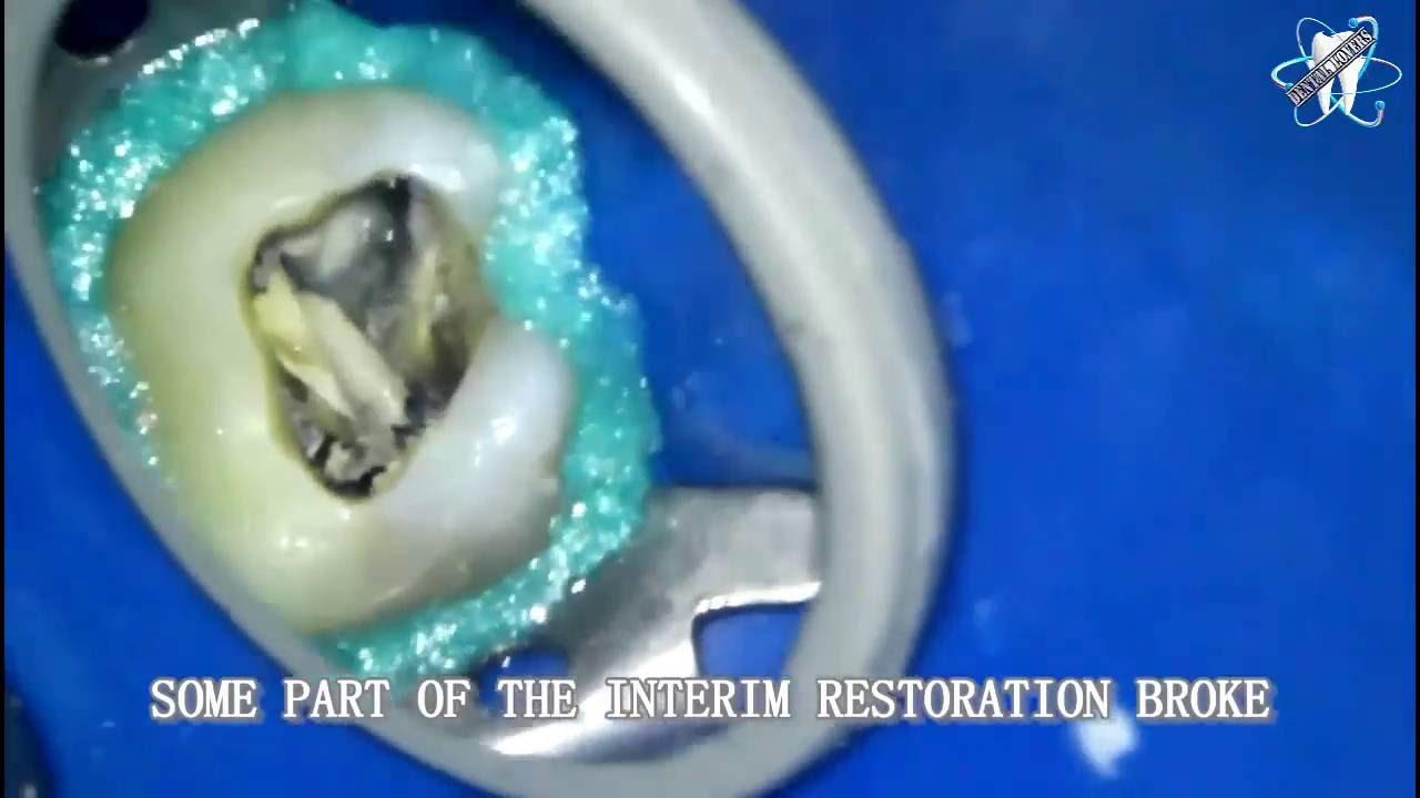 الوان تقويم الاسنان Braces Colors Youtube