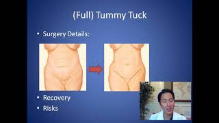 cum să pierdeți în greutate înainte de tuck tummy pierde grăsimea corporală la 50