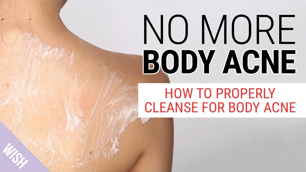 How Do We Get Rid Of Body Acne The Best Body Wash For Body Acne Wishtrend Youtube