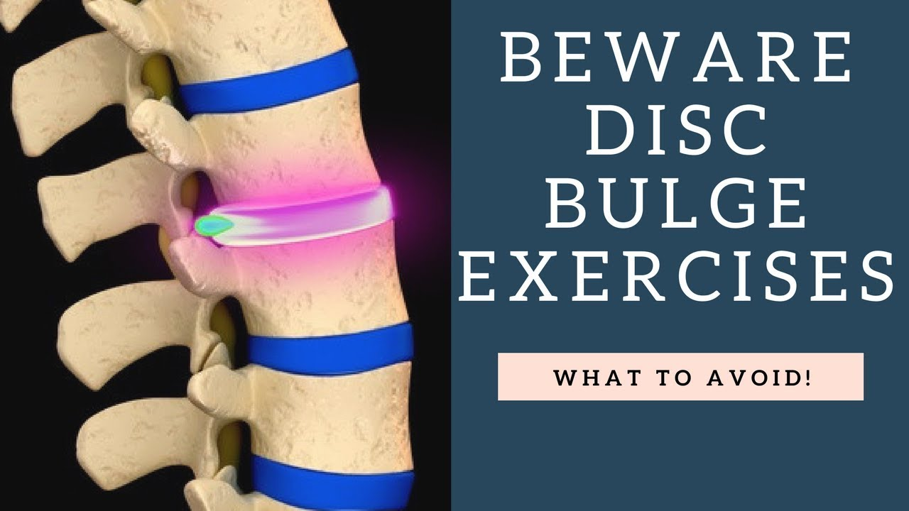 Top Exercises To Avoid For A Bulging Disc And Herniated ...