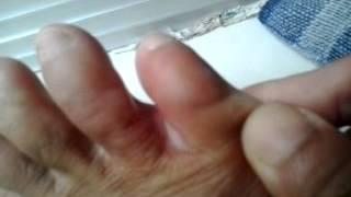 Mengobati jari bengkak Dan gatal dengan menggunakan isi manglai... Cara Ambilah isi manglai secukup .