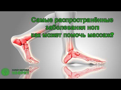 Клапанная недостаточность вен нижних конечностей: лечение