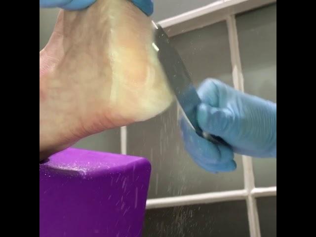 Podiatry Treatment For Callus