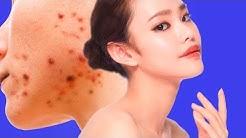 hqdefault - I Have Sensitive Skin And Bad Acne