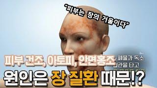 피부는 장의 거울이다. 만성적인 피부질환의 원인은 장에…