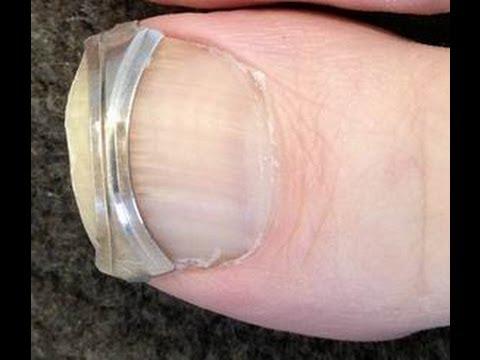 How to Straighten Ingrown Toenails - Attach a Spring Clip to Toenail ...