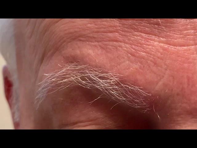 Dallas Eyebrow Transplant for Trichotillamania