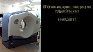 КТ (Компьютерная томография) - грудной клетки | Computed Tomography - chest(Computed Tomography - chest 19.05.2014g. КТ (Компьютерная томография) - грудной клетки 19.05.2014г., 2014-05-19T11:47:08.000Z)